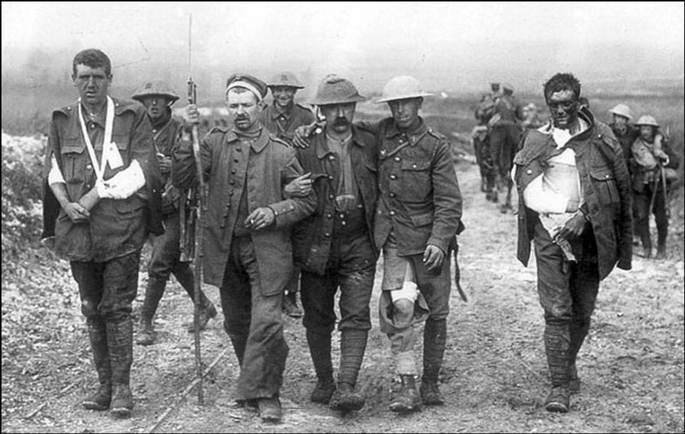 En fredeligere verden?: Sårede tyske og britiske soldater 19. juli 1916 ved Somme i Frankrike. Under den første verdenskrigen døde 37 millioner mennesker. Foto: Ernest Brooks/Imperial War Museum